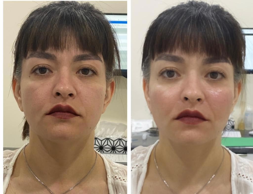 Glowry Cosmetic Cheek Augmentation