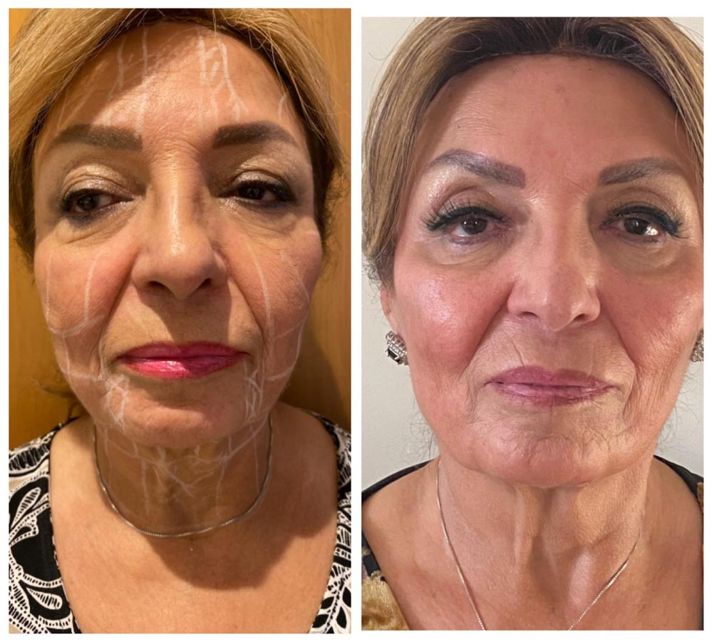 Glowry Cosmetic Clinic Skin tightening. After 2x Ulfit treatments including cheek fillers