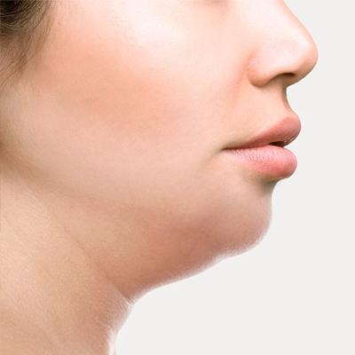 Glowry Cosmetic Double Chin Treatment