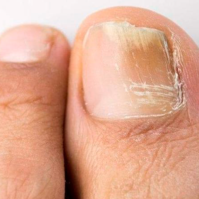 Fungal Nail Infection Treatment at Glowry Cosmetic